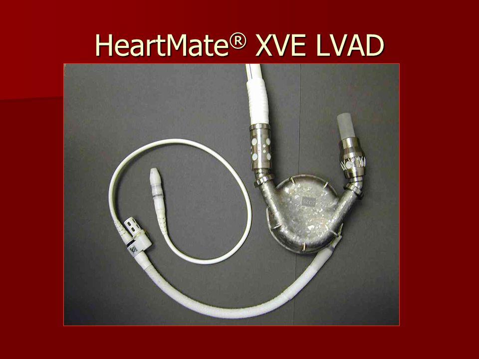 HeartMate ® XVE LVAD