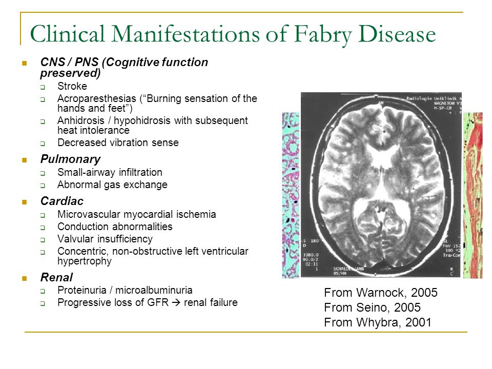 Clinical Manifestations of Fabry Disease CNS / PNS (Cognitive function preserved)  Stroke  Acroparesthesias ( Burning sensation of the hands and feet )  Anhidrosis / hypohidrosis with subsequent heat intolerance  Decreased vibration sense Pulmonary  Small-airway infiltration  Abnormal gas exchange Cardiac  Microvascular myocardial ischemia  Conduction abnormalities  Valvular insufficiency  Concentric, non-obstructive left ventricular hypertrophy Renal  Proteinuria / microalbuminuria  Progressive loss of GFR  renal failure From Warnock, 2005 From Seino, 2005 From Whybra, 2001