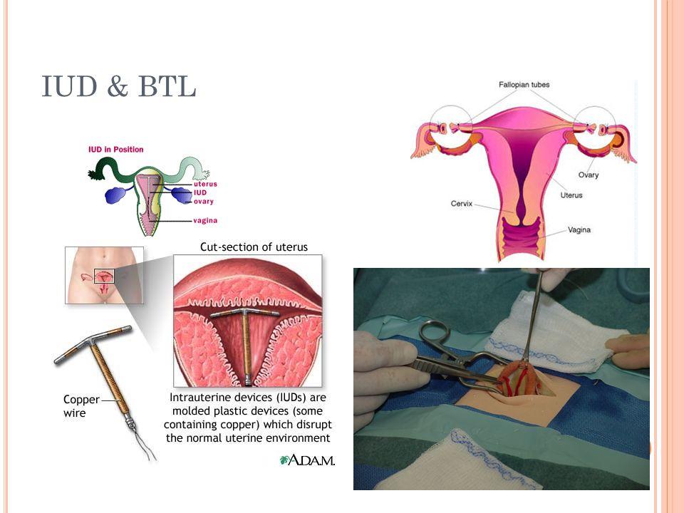 IUD & BTL