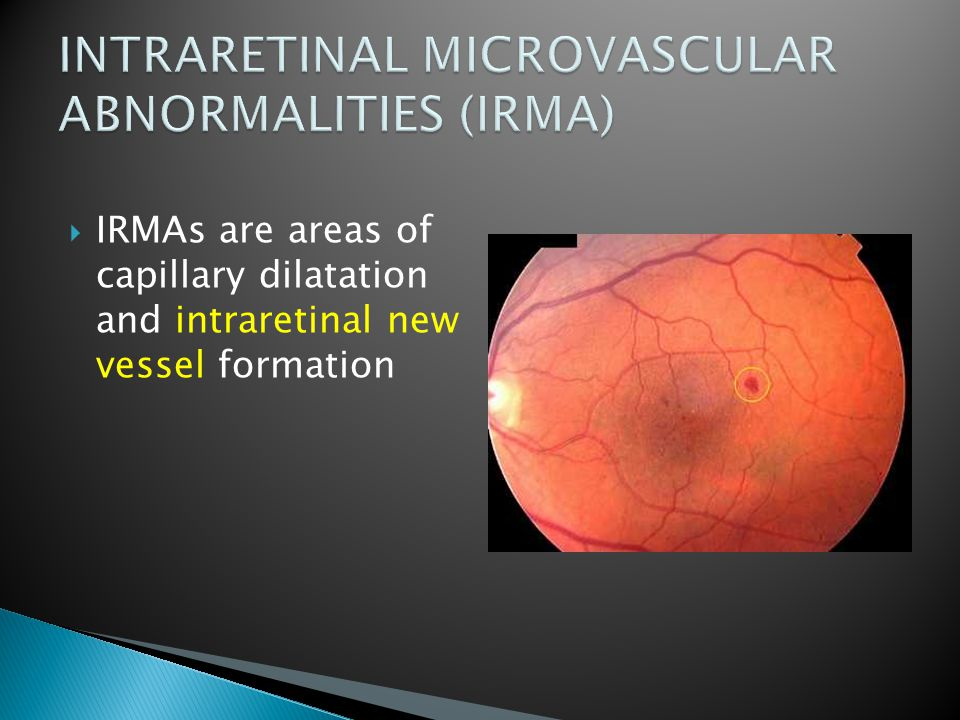  IRMAs are areas of capillary dilatation and intraretinal new vessel formation