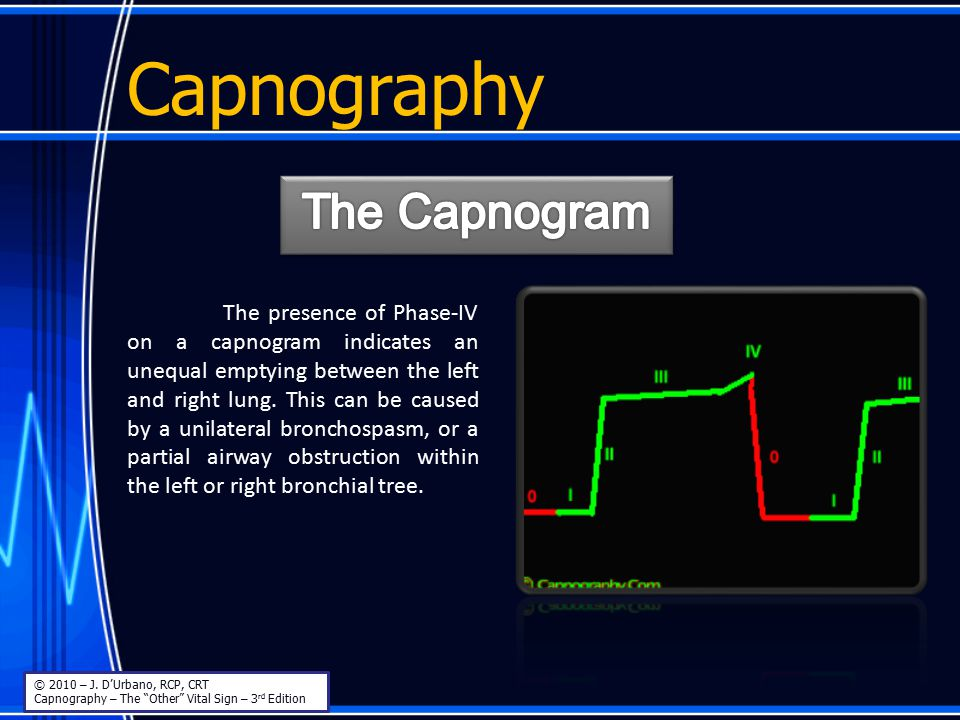 """Capnography © 2010 – J. D'Urbano, RCP, CRT Capnography – The """"Other"""" Vital Sign – 3 rd Edition The presence of Phase-IV on a capnogram indicates an un"""
