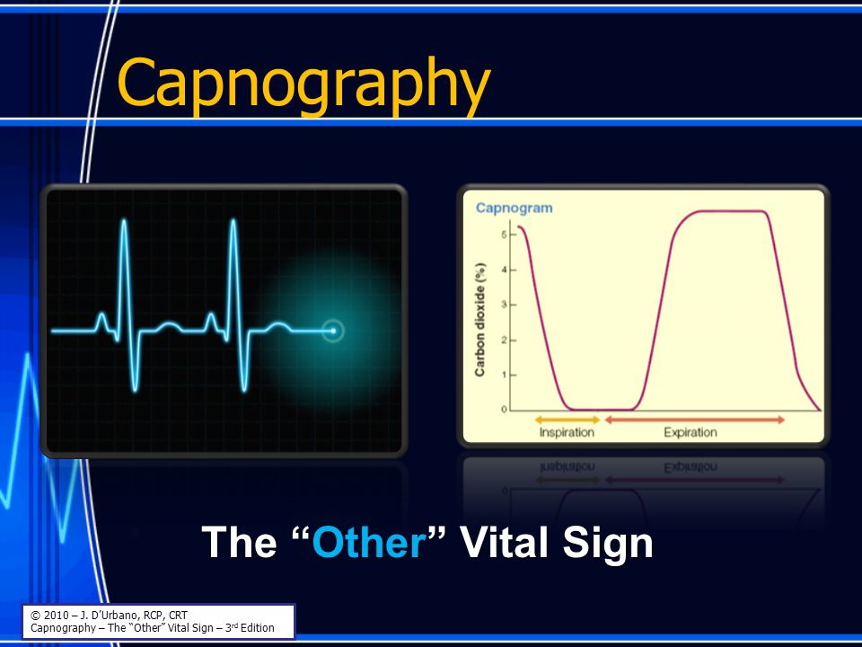 """Capnography The """"Other"""" Vital Sign © 2010 – J. D'Urbano, RCP, CRT Capnography – The """"Other"""" Vital Sign – 3 rd Edition"""