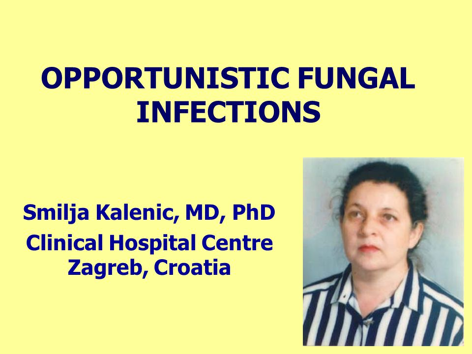 OPPORTUNISTIC FUNGAL INFECTIONS Smilja Kalenic, MD, PhD Clinical Hospital Centre Zagreb, Croatia