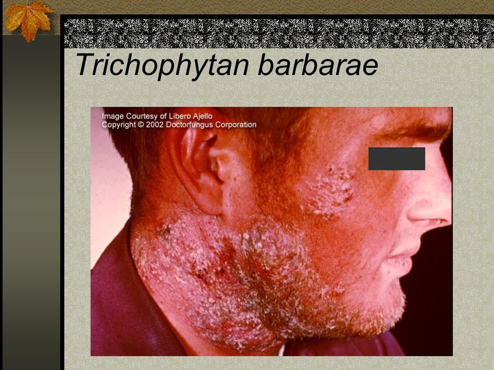 Trichophytan barbarae