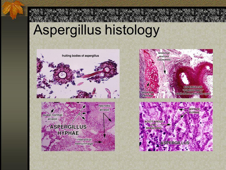 Aspergillus histology