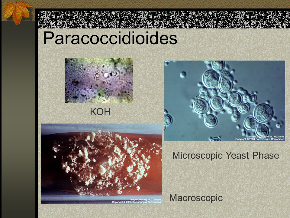 Paracoccidioides KOH Microscopic Yeast Phase Macroscopic
