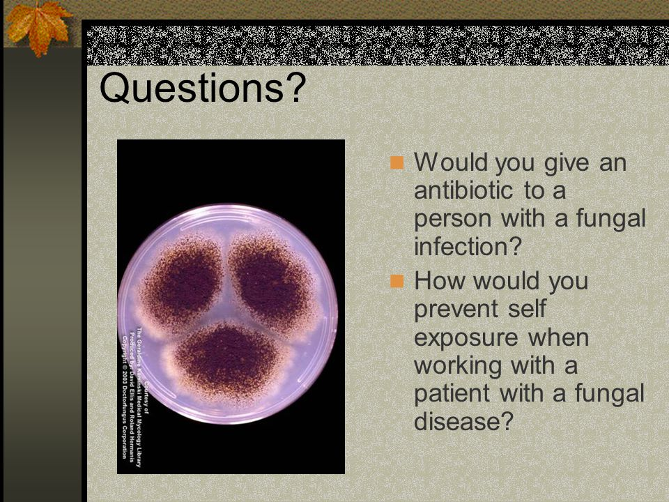 Questions. Would you give an antibiotic to a person with a fungal infection.