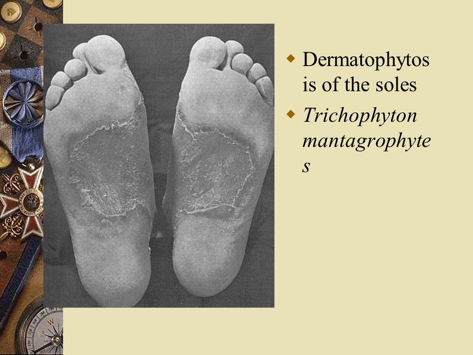  Dermatophytos is of the soles  Trichophyton mantagrophyte s