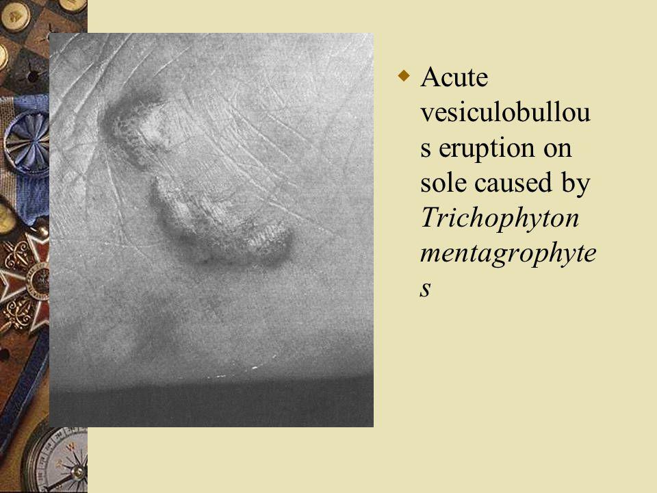  Acute vesiculobullou s eruption on sole caused by Trichophyton mentagrophyte s