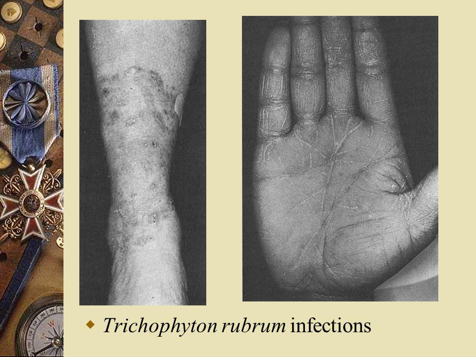  Trichophyton rubrum infections