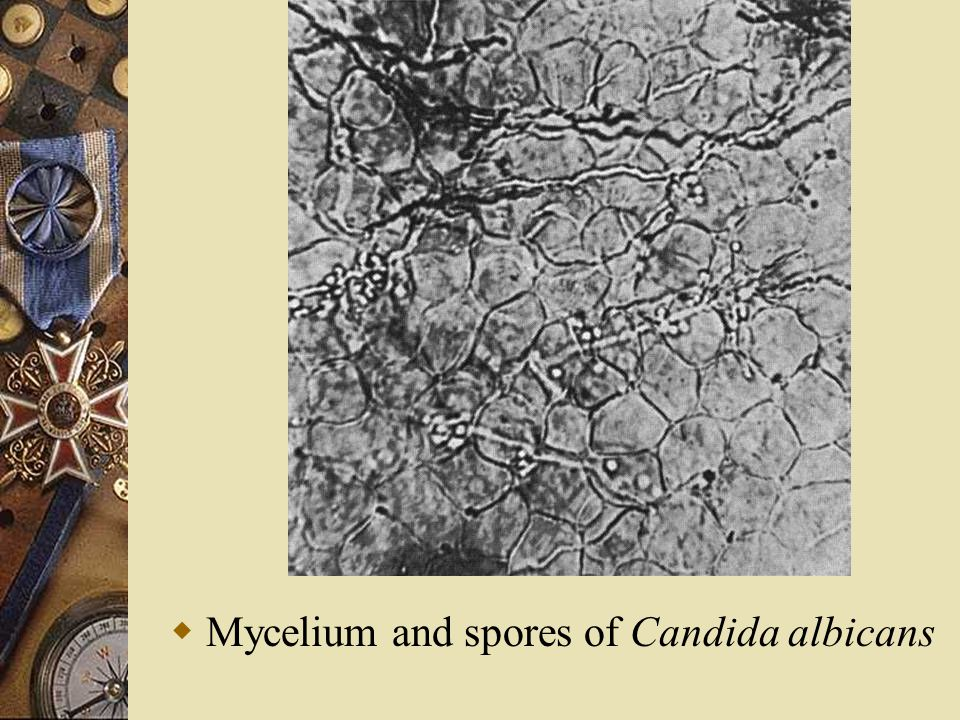  Mycelium and spores of Candida albicans