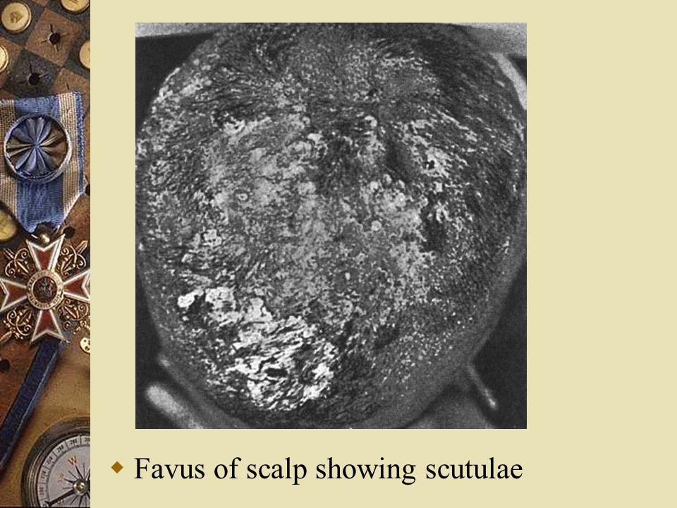  Favus of scalp showing scutulae