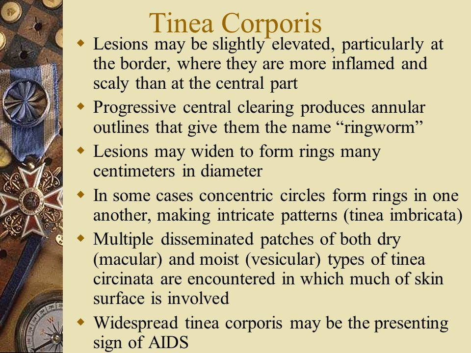 Tinea Corporis  Lesions may be slightly elevated, particularly at the border, where they are more inflamed and scaly than at the central part  Progr