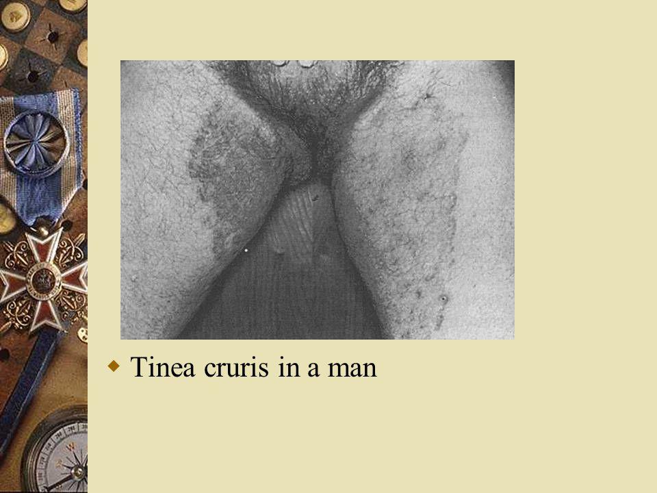  Tinea cruris in a man