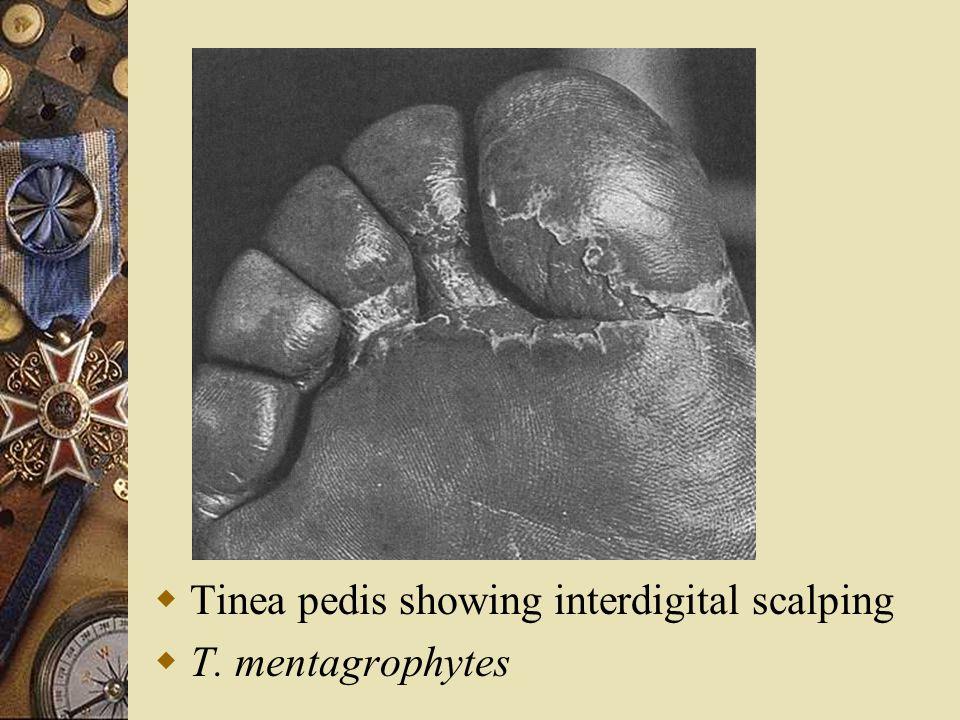  Tinea pedis showing interdigital scalping  T. mentagrophytes