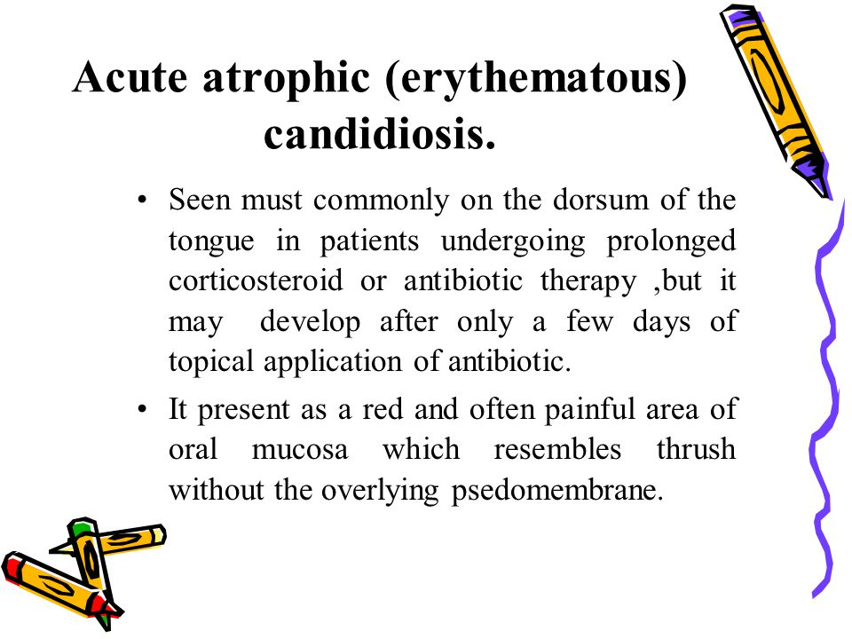 Acute atrophic (erythematous) candidiosis. Seen must commonly on the dorsum of the tongue in patients undergoing prolonged corticosteroid or antibioti