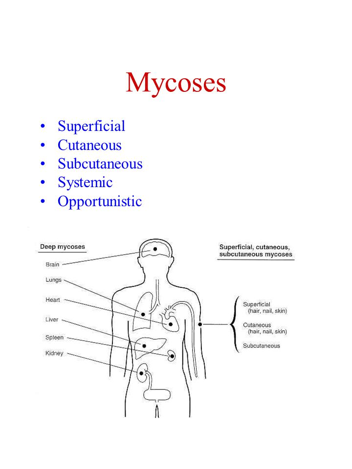 Mycoses Superficial Cutaneous Subcutaneous Systemic Opportunistic