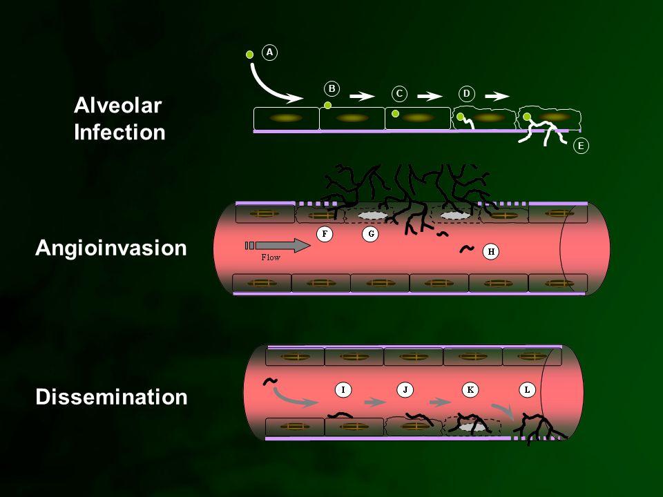 A B CD E Alveolar Infection Angioinvasion Dissemination