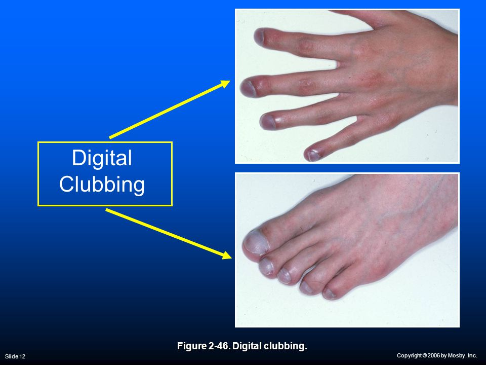 Copyright © 2006 by Mosby, Inc. Slide 12 Digital Clubbing Figure 2-46. Digital clubbing.