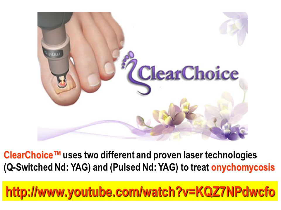 ClearChoice™ ClearChoice™ uses two different and proven laser technologies onychomycosis (Q-Switched Nd: YAG) and (Pulsed Nd: YAG) to treat onychomyco