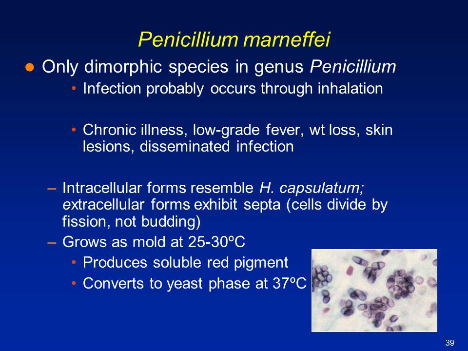 39 Penicillium marneffei Only dimorphic species in genus Penicillium Infection probably occurs through inhalation Chronic illness, low-grade fever, wt