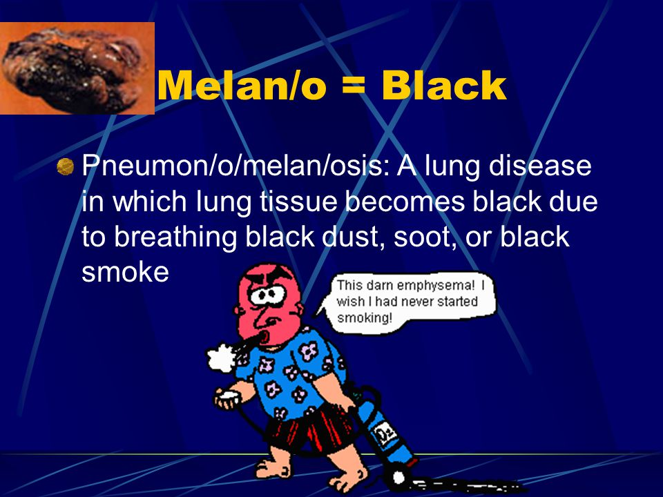 Melan/o = Black Pneumon/o/melan/osis: A lung disease in which lung tissue becomes black due to breathing black dust, soot, or black smoke