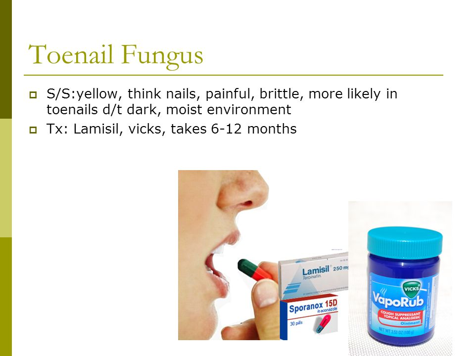 S/S:yellow, think nails, painful, brittle, more likely in toenails d/t dark, moist environment  Tx: Lamisil, vicks, takes 6-12 months