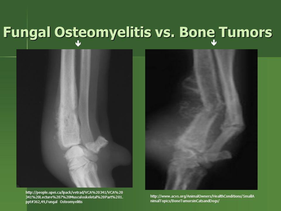Fungal Osteomyelitis vs.