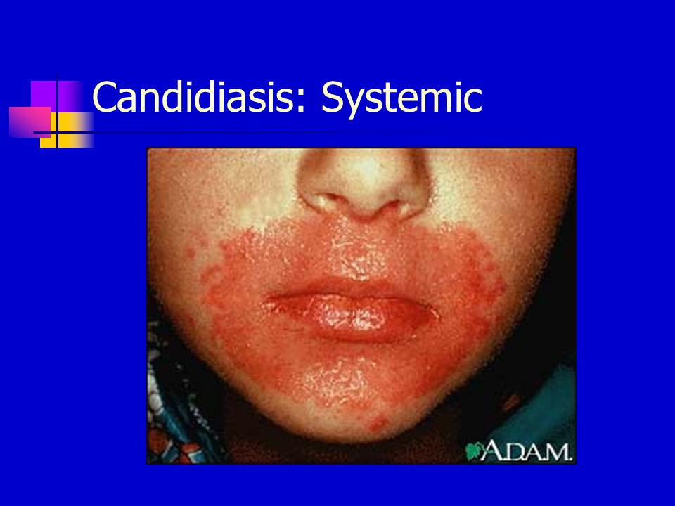 Candidiasis: Systemic