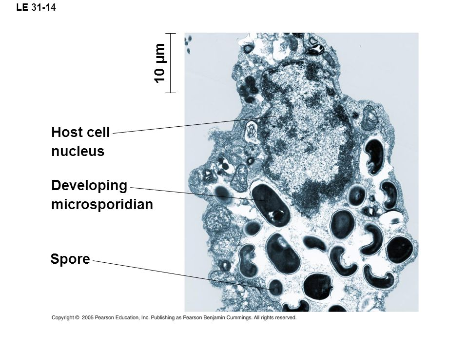 LE 31-14 10 µm Spore Developing microsporidian Host cell nucleus
