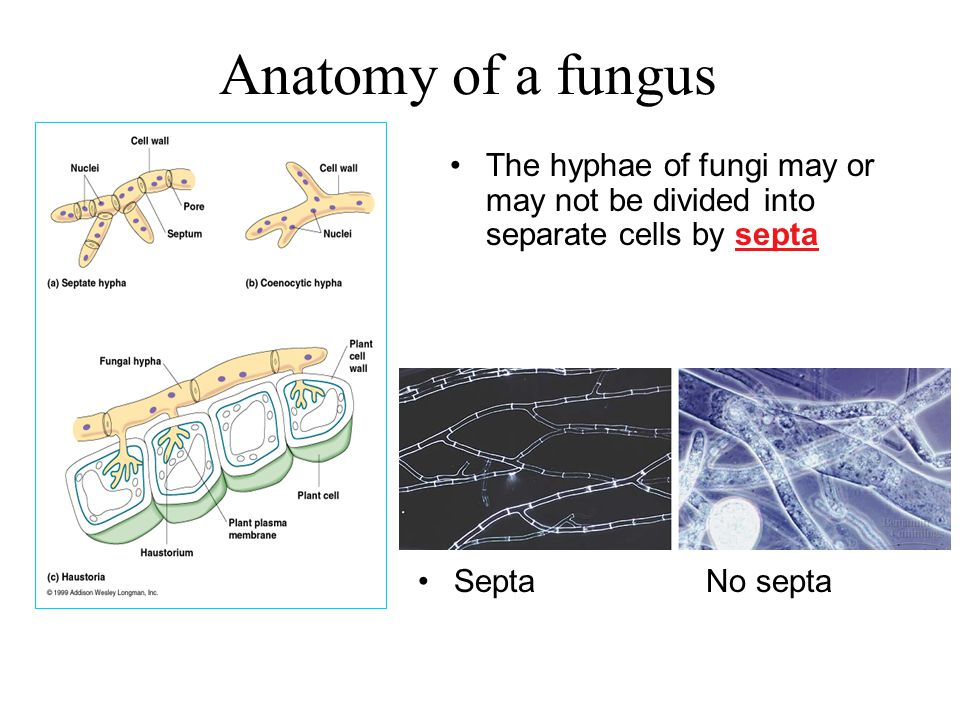 Anatomy of a fungus The hyphae of fungi may or may not be divided into separate cells by septa SeptaNo septa