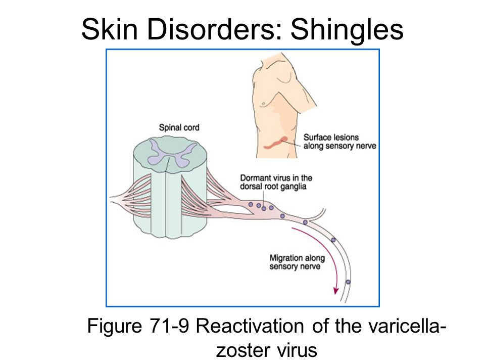 Skin Disorders: Shingles Figure 71-9 Reactivation of the varicella- zoster virus