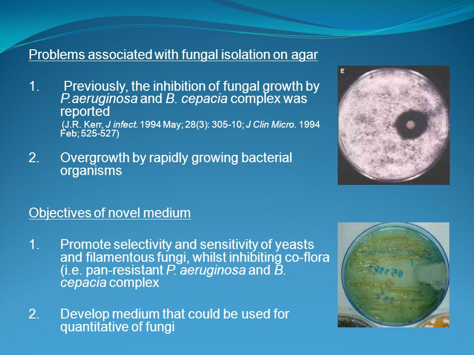 Problems associated with fungal isolation on agar 1.