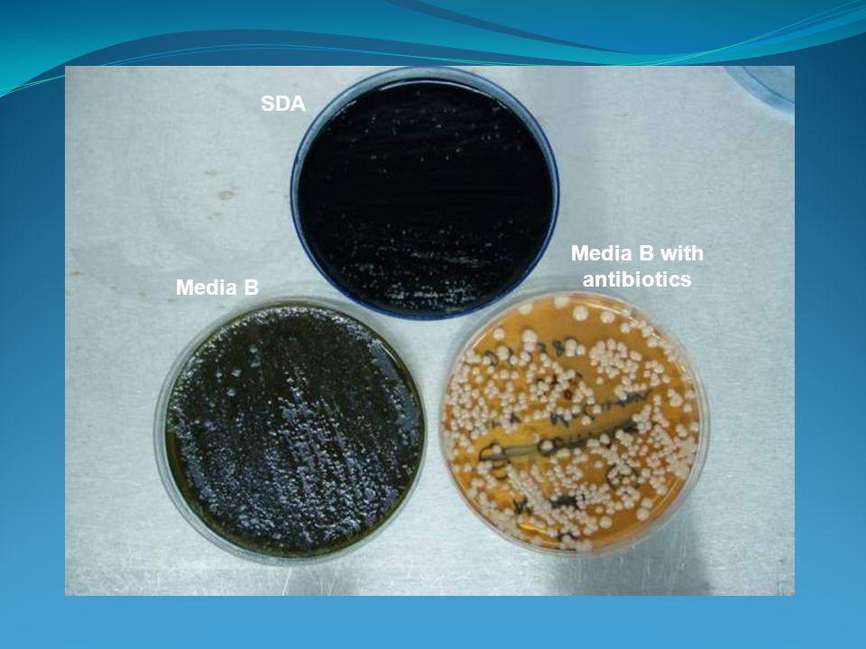 SDA Media B Media B with antibiotics