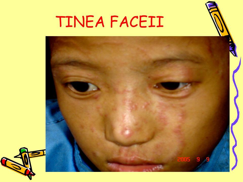 TINEA FACEII