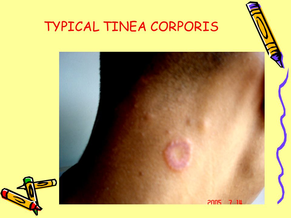 TYPICAL TINEA CORPORIS