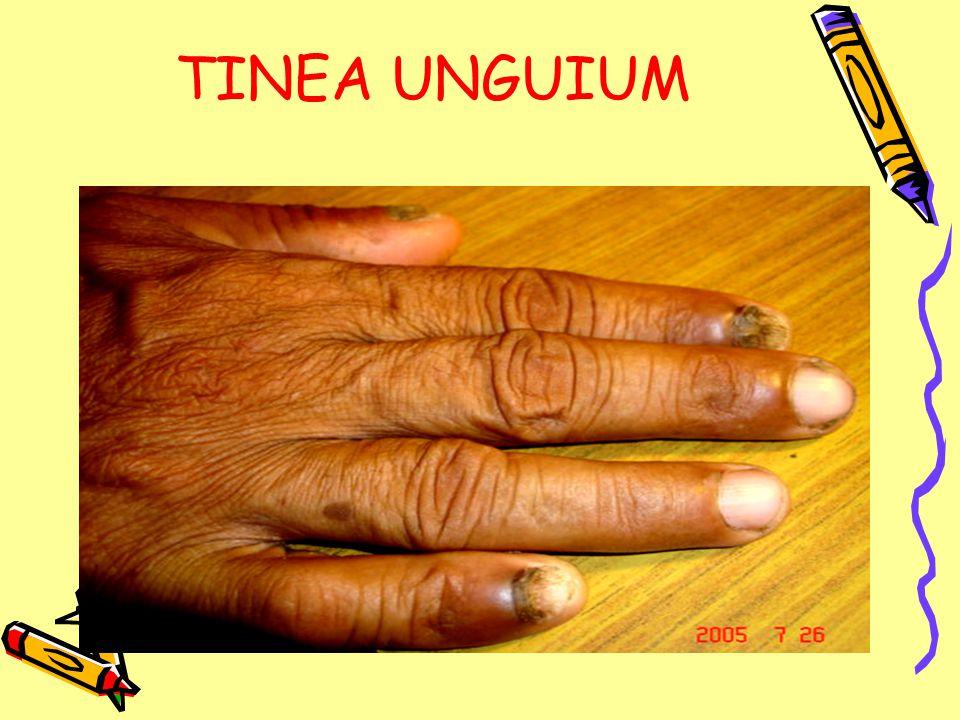 TINEA UNGUIUM