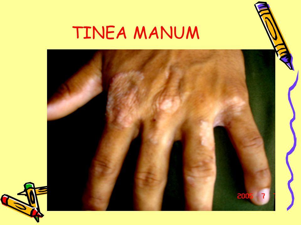 TINEA MANUM