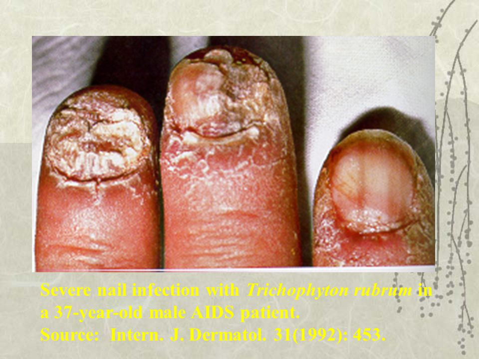 Severe nail infection with Trichophyton rubrum in a 37-year-old male AIDS patient. Source: Intern. J. Dermatol. 31(1992): 453.