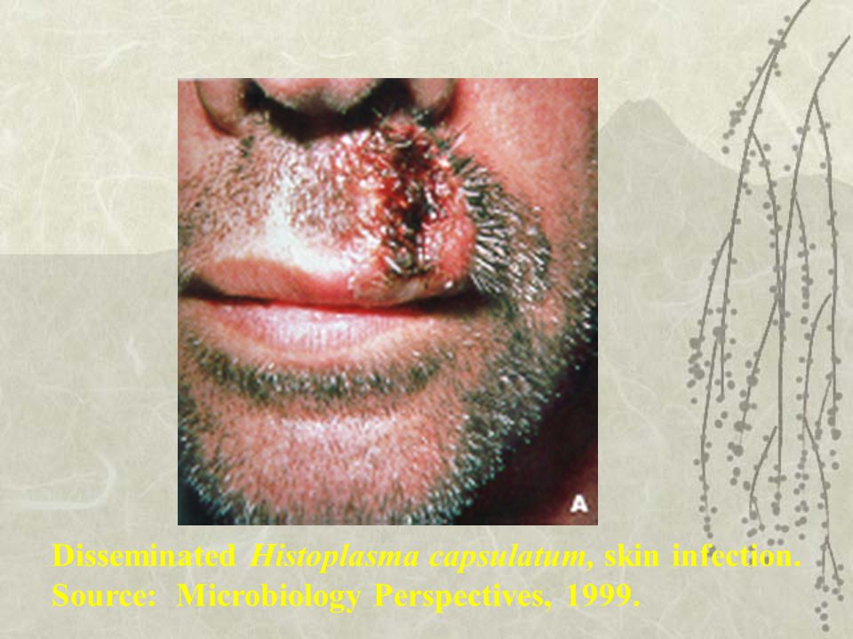 Disseminated Histoplasma capsulatum, skin infection. Source: Microbiology Perspectives, 1999.