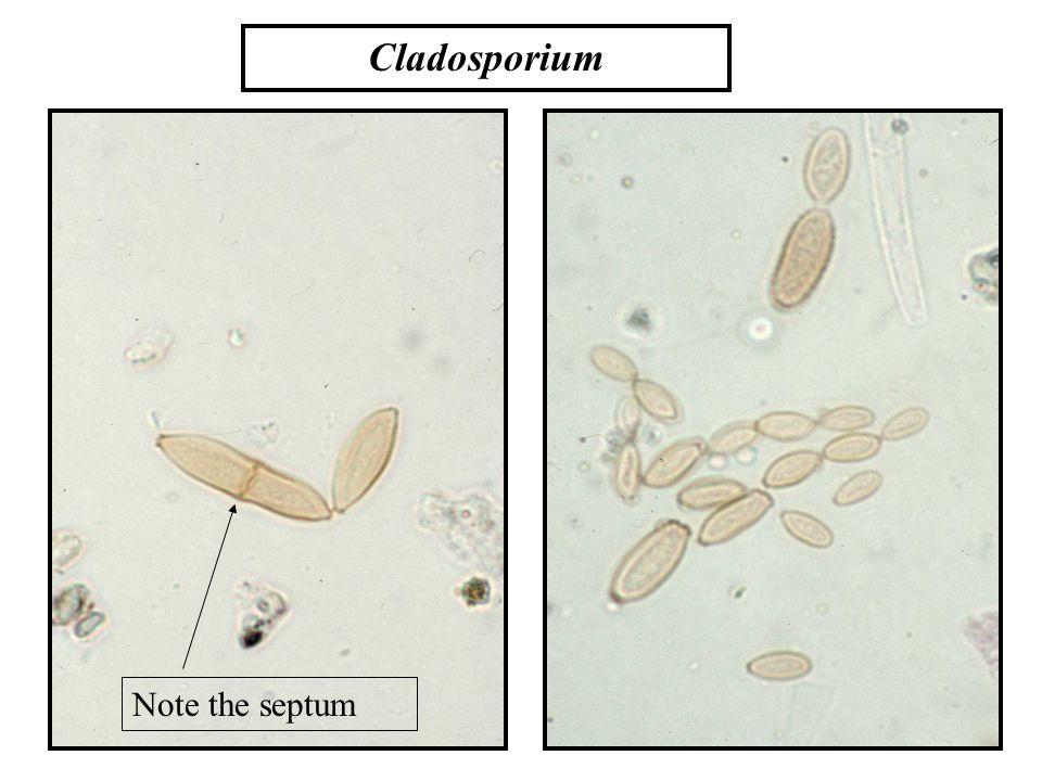 Note the septum Cladosporium