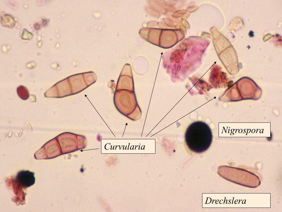 Nigrospora Drechslera