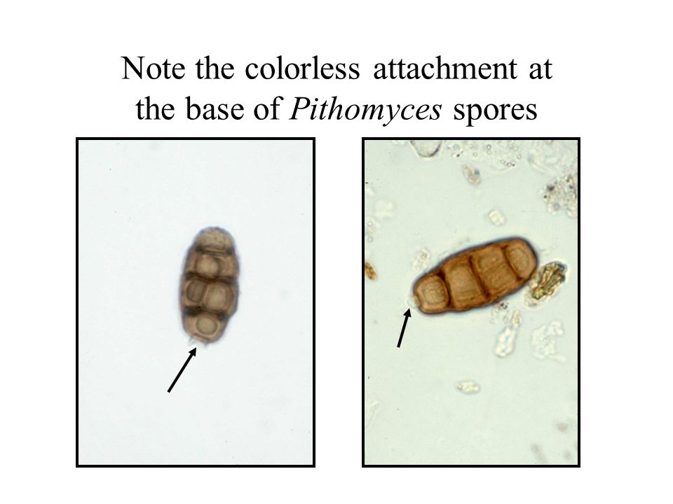 Note the colorless attachment at the base of Pithomyces spores
