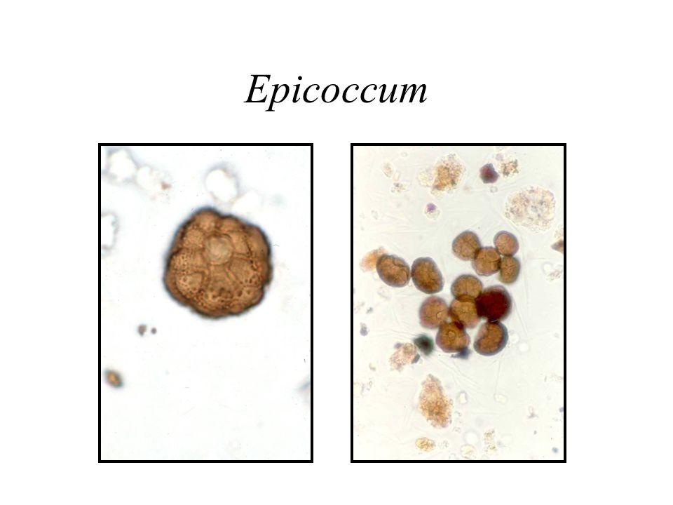 Epicoccum