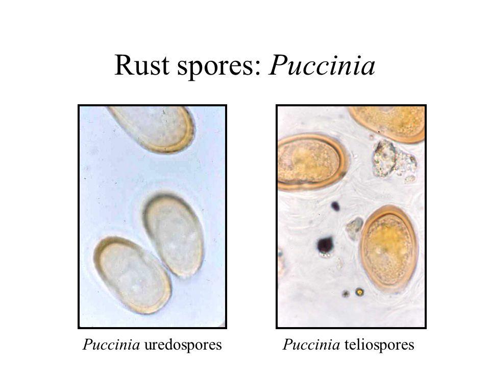 Rust spores: Puccinia Puccinia uredosporesPuccinia teliospores