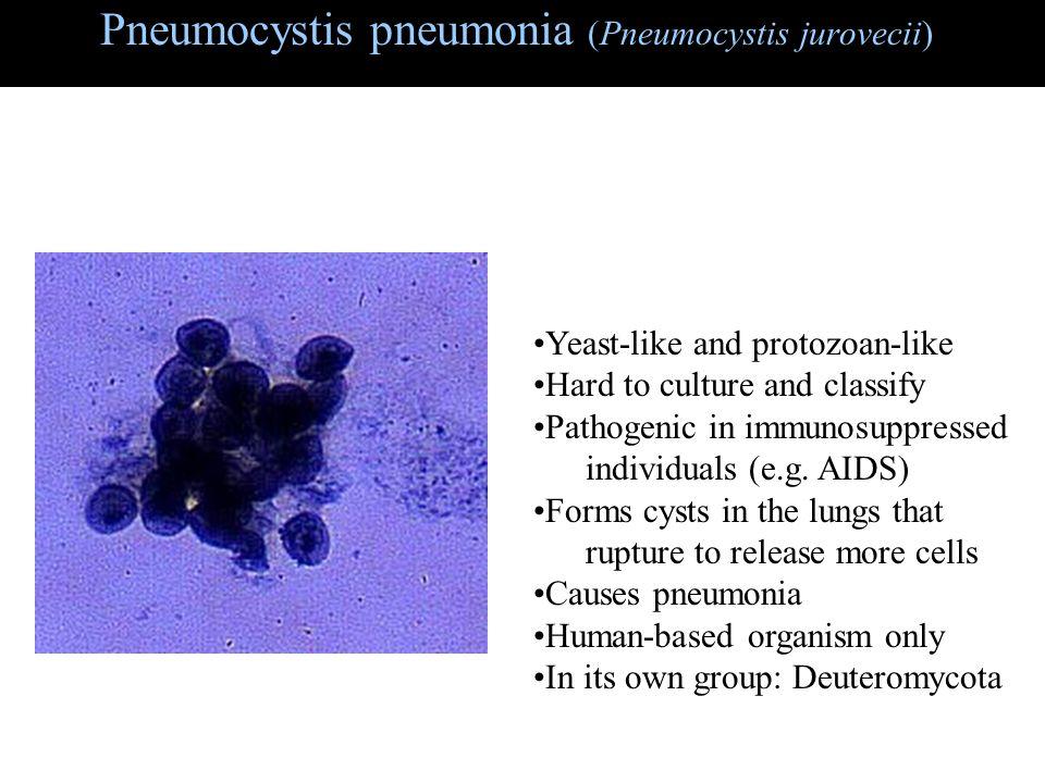 Pneumocystis pneumonia (Pneumocystis jurovecii) Yeast-like and protozoan-like Hard to culture and classify Pathogenic in immunosuppressed individuals (e.g.