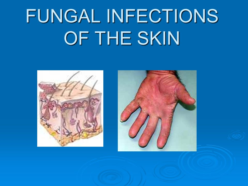 FUNGAL INFECTIONS OF THE SKIN