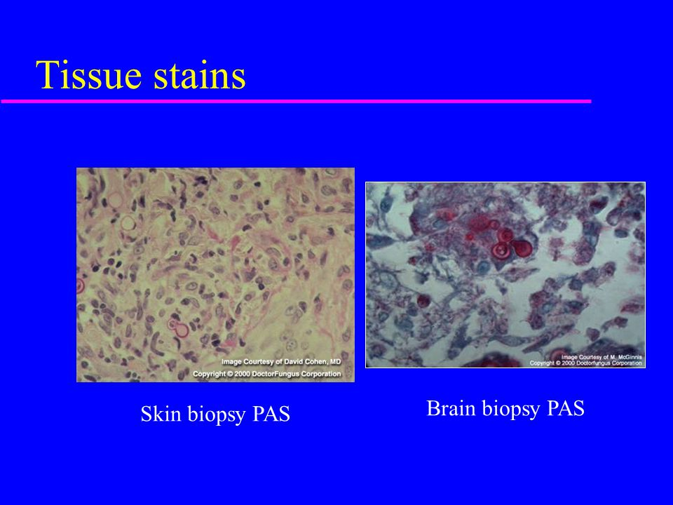 Tissue stains Skin biopsy PAS Brain biopsy PAS