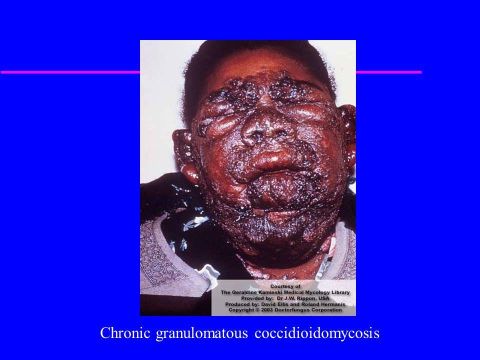 Chronic granulomatous coccidioidomycosis