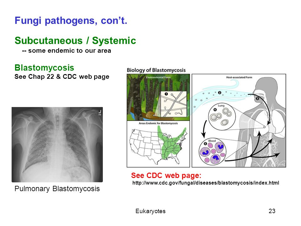 Eukaryotes23 Fungi pathogens, con't. Subcutaneous / Systemic -- some endemic to our area Blastomycosis See Chap 22 & CDC web page Pulmonary Blastomyco